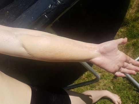Jess` leg